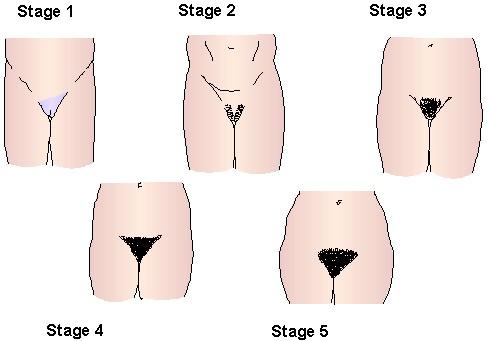 female vaginal development
