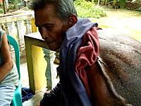 フィリピンで背中に驚くほど巨大な腫瘍を背負った老人が発見される。