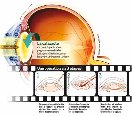cataracte4