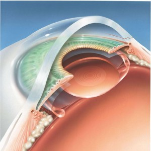 implant-multifocal