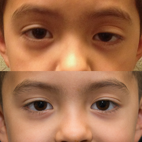 Droopy Eyelids (Ptosis) Treatments - Harris Eye and Facial Plastic - ptosis surgery
