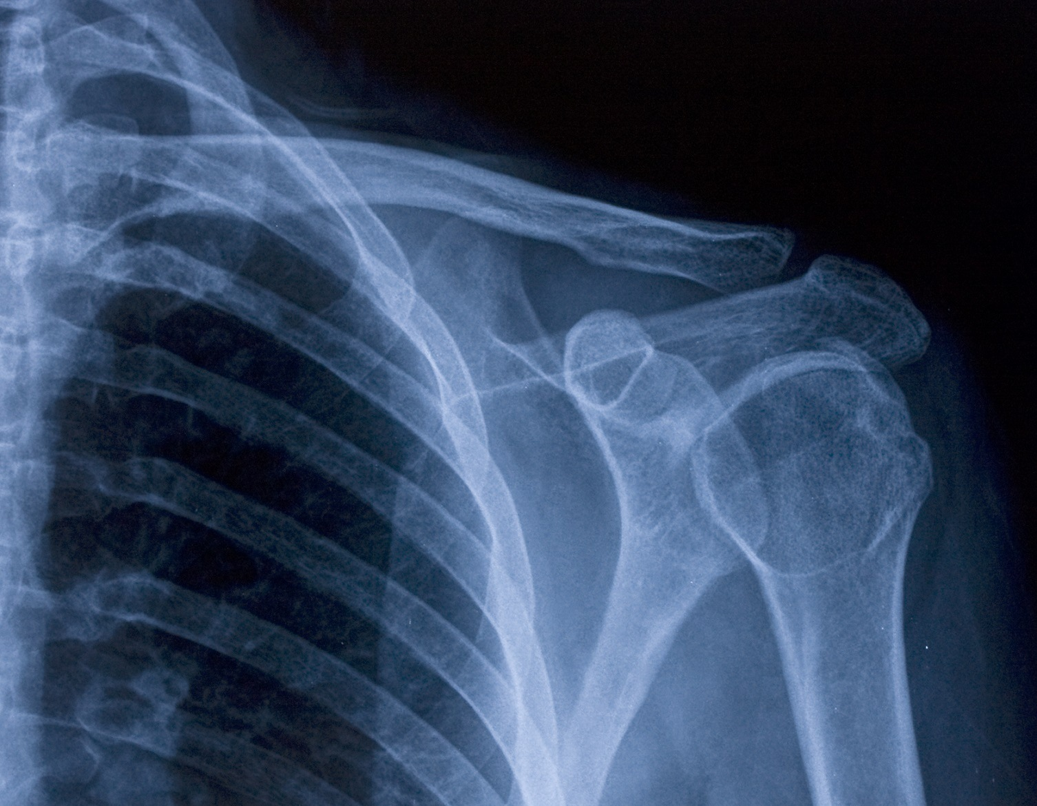 Baby Newborn Xray What To Do In The Event Of A Newborn Clavicle Fracture