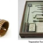 Trepanation: Hole in The Head