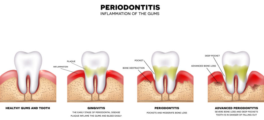 Warning! The Stages of Gum Disease to Watch Out For