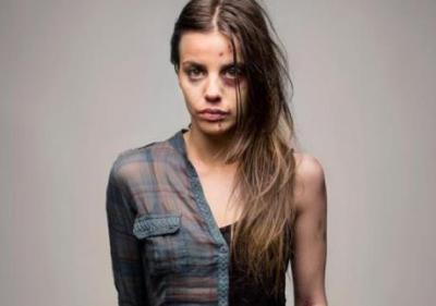 薬物中毒者たちのビフォーアフター<画像>ドラッグはたった数年で人の容姿をここまで変える