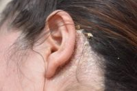 Do You Have an Itchy Scalp? 5 Common Problems and Fixes ...