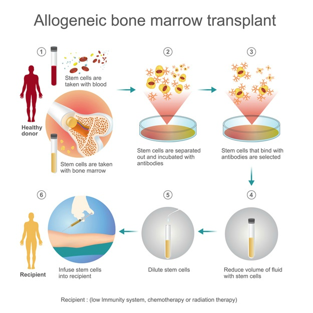 Stem Cell Transplant Types and Procedures BioInformant