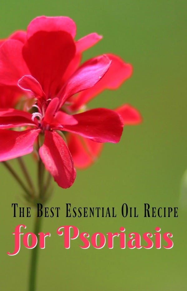 Essential Oil Recipe for Treating Psoriasis \u2013 3 Boys and a Dog - essential oil for psoriasis