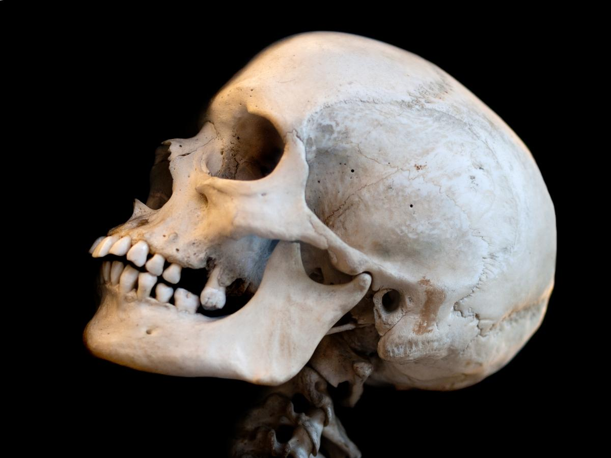 Human Skull Western Australia Researchers Use 3d Printing To Make