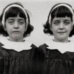【狂気の戦時医学】ナチスの人体実験まとめ【ヒトラー・ドイツ】