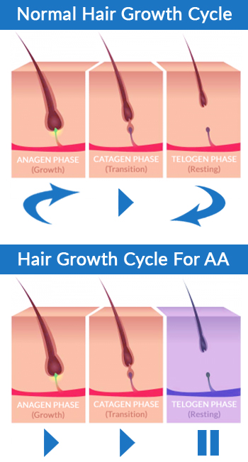 The Different Types of Autoimmune Alopecia