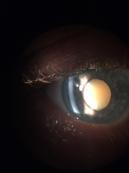 Inspecting Eyeballs