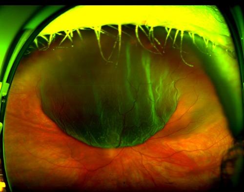 Inspecting Eyeballs - Presumed Ocular Histoplasmosis