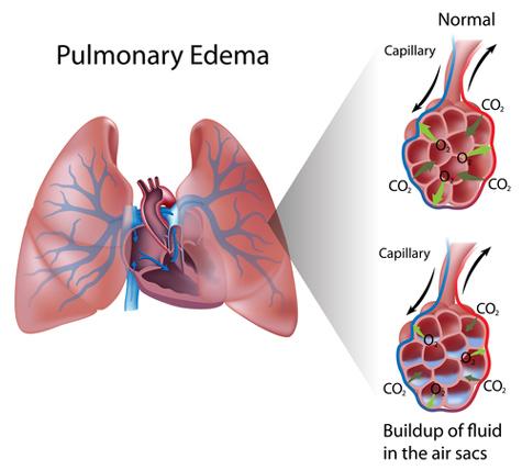 Diagram Of Edema - Just Wiring Data