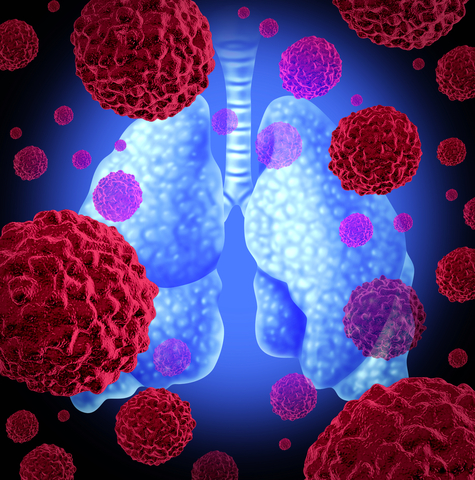 Sputum Test May Help Detect Early Lung Cancer RT