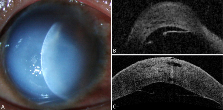 Icd Collections Acute Corneal Hydrops - Ophthalmology