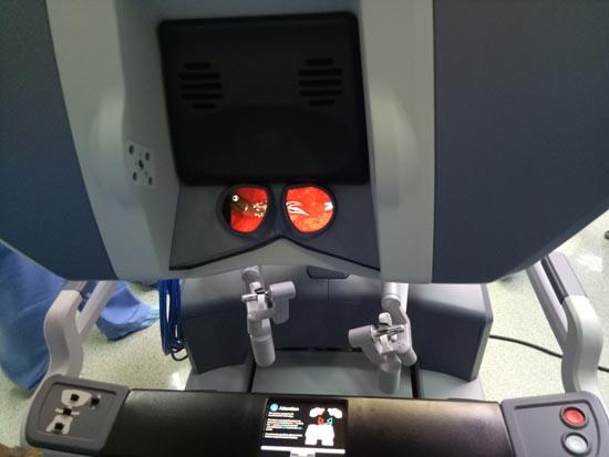 controls of robotics surgery