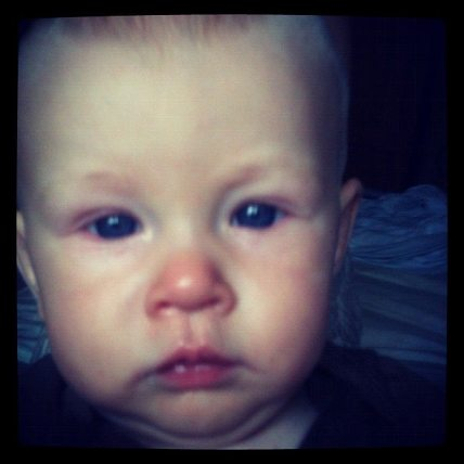 sad sick face baby