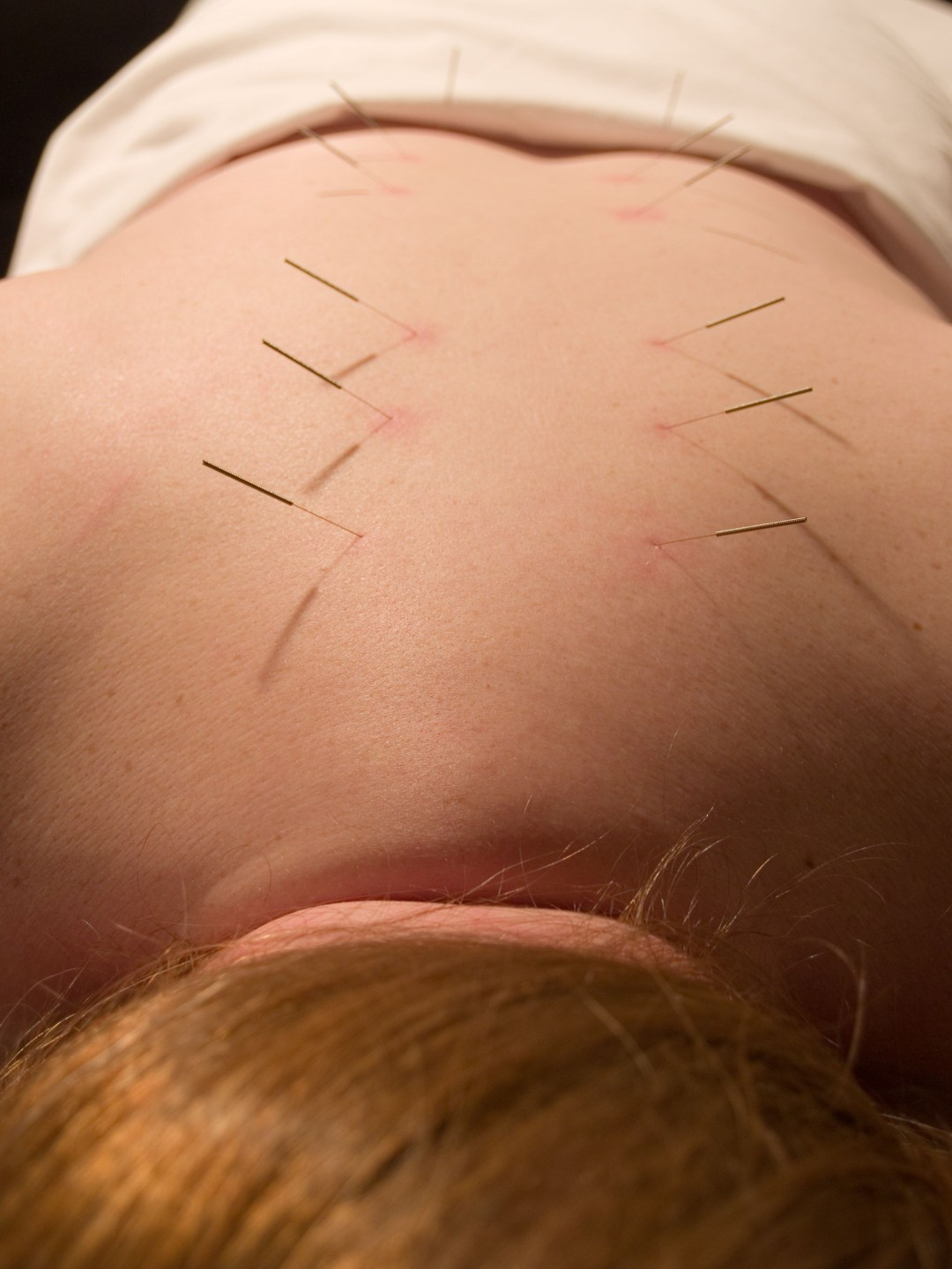 The Eastern or Asian acupuncture medical treatment said to prevent or treat a variety of medical ailments including pain.
