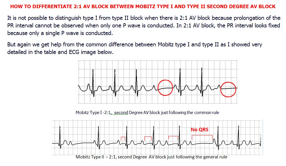 HOW TO DIFFERENTIATE 21 AV BLOCK BETWEEN MOBITZ TYPE I AND TYPE II