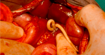 Adult ascaris worms being removed from the bile duct of a patient. Photo credit: Larry Hadley [CC BY 2.0 (http://creativecommons.org/licenses/by/2.0)], via Wikimedia Commons