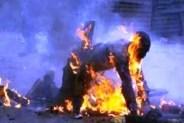 عااجل:عاشق يخيط فمه بسلك،ويضرم النار في جسده بسبب عشيقته