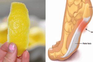 peel-lemon-can-remove-joint-pain-forever