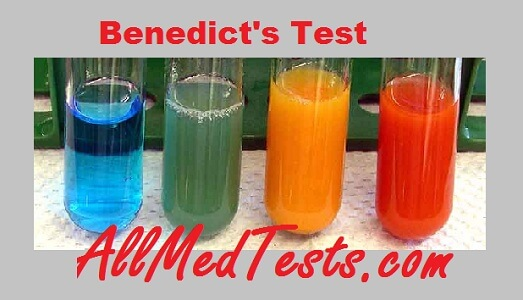 Iodine test for Starch- Its Principle, Reagents, Procedure etc - iki solution