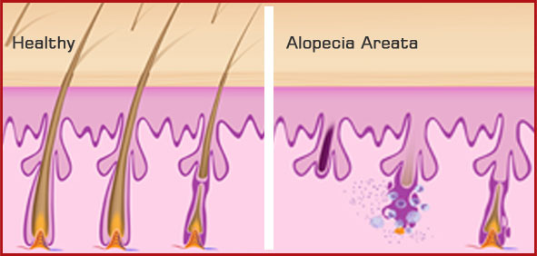 Alopecia Diagram Wiring Diagram