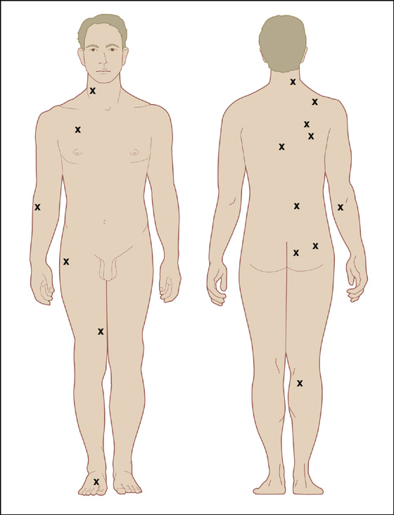Myofascial Pain Syndrome And Trigger Point gallery - iuniana