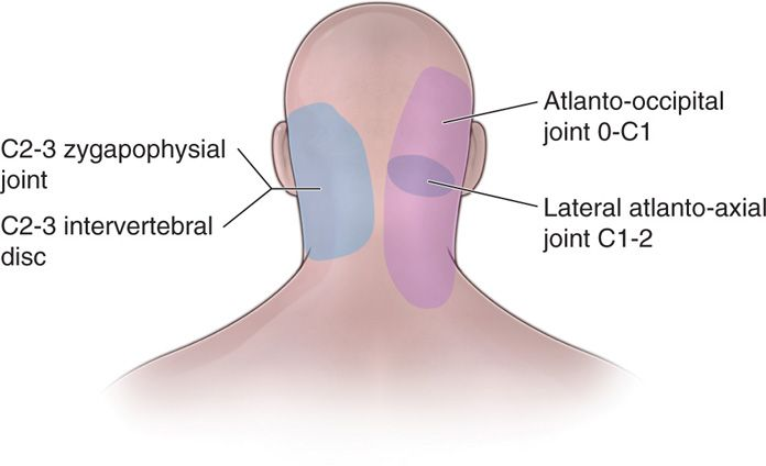 Atlanto-Axial Joint Injections Anesthesia Key