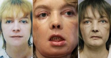 face transplant november 27 2012 anewdomain