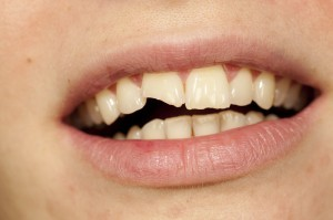chipped-tooth-management