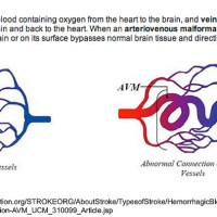 What is an AVM?