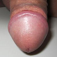 gambar penis pria