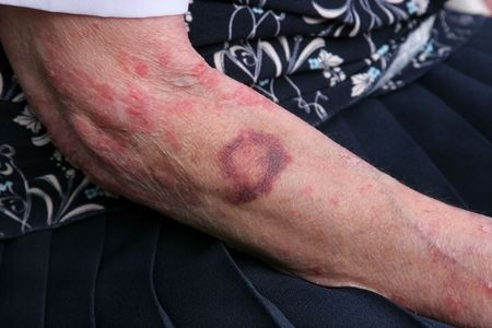 Signs Of Nursing Home Abuse Bed Sores Anthony Carbone Pc