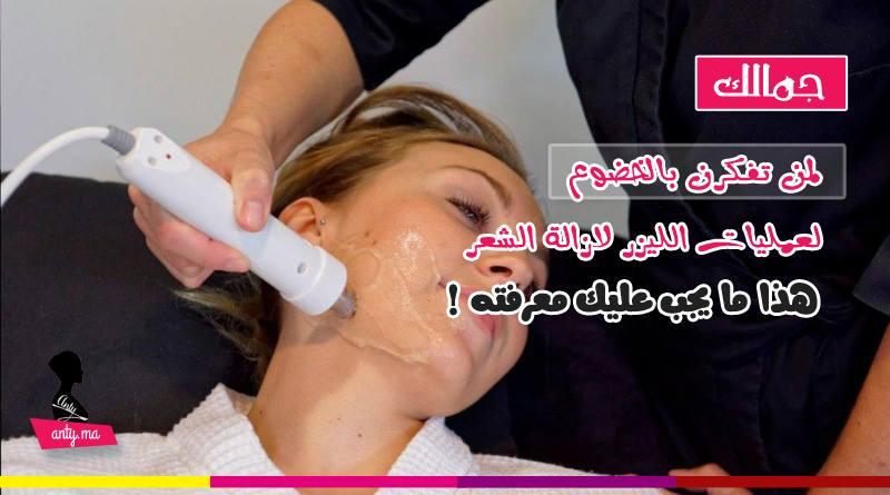 عمليات الليزر لازالة الشعر - هذا ما عليك معرفته
