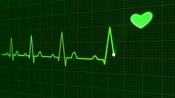 心電図の波形