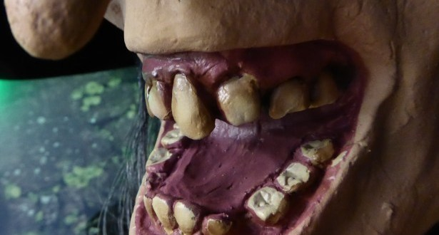 Serious Health Conditions Caused by Poor Dental Care