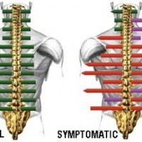 Image of a print our in colour of spinal scan for patient