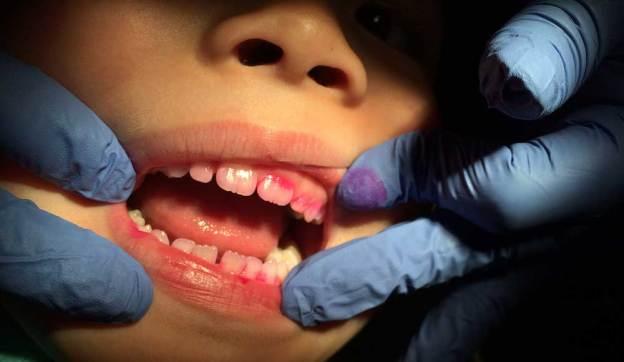 Teeth with Dentist