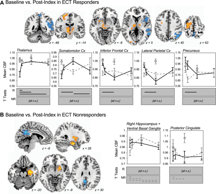 Mechanisms of Antidepressant Response to Electroconvulsive Therapy