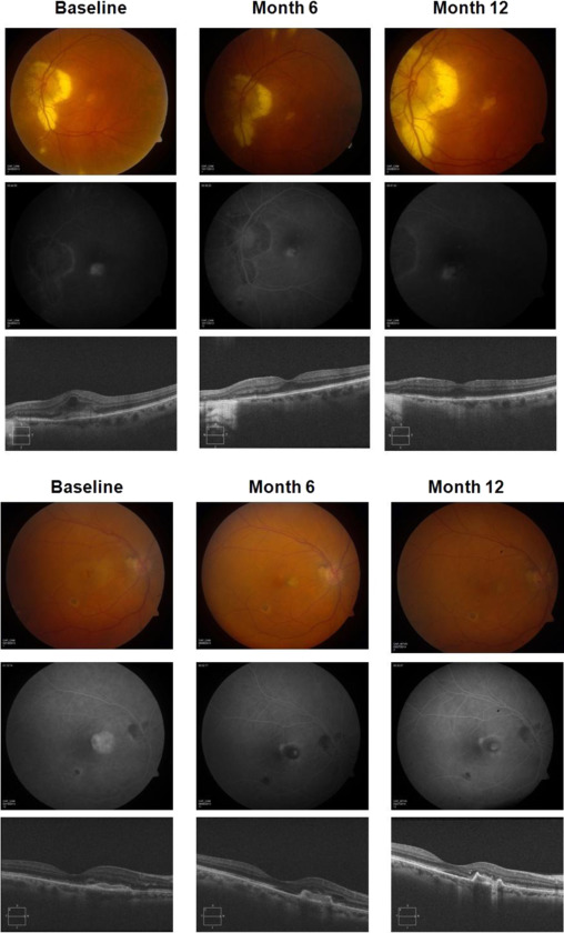 Treatment of CNV secondary to presumed ocular histoplasmosis with - Presumed Ocular Histoplasmosis