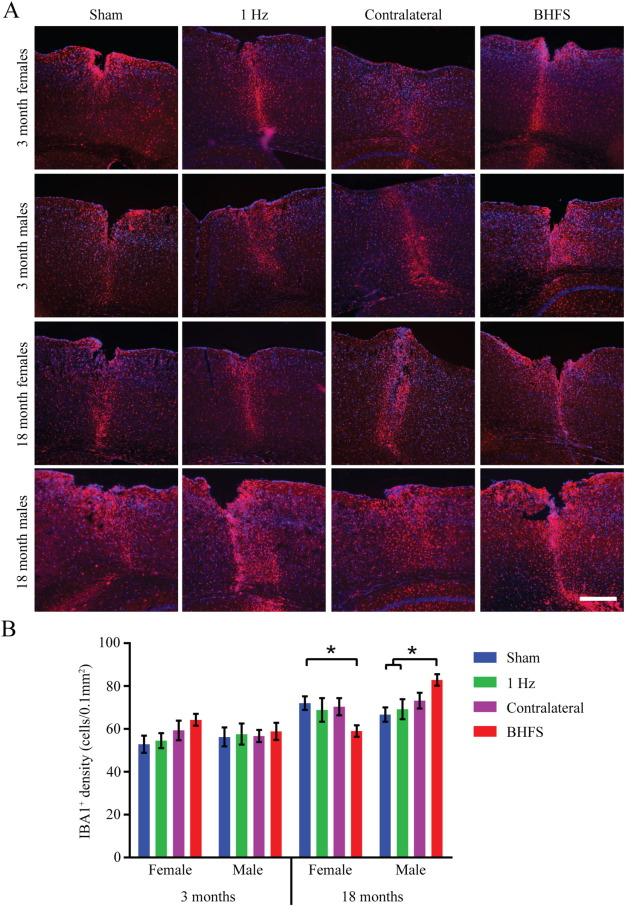 Low intensity rTMS has sex-dependent effects on the local response