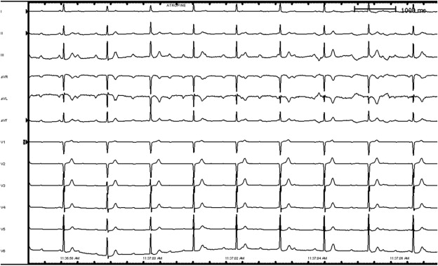 Recurrent A V block following ablation for AVNRT - ScienceDirect