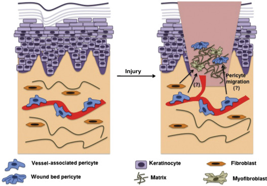 A Comprehensive Review of Advanced Biopolymeric Wound Healing