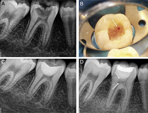 Treatment Outcome Following Direct Pulp Capping Using Bioceramic