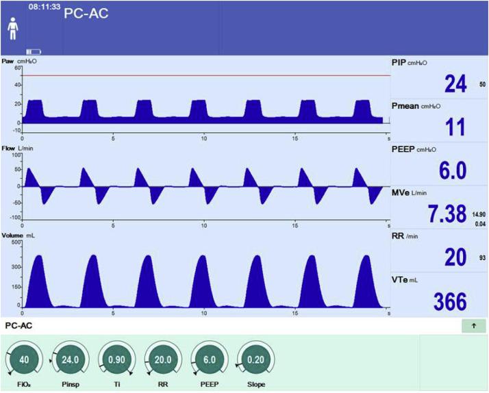 Clinical management of pressure control ventilation An algorithmic