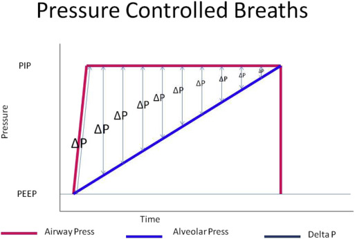 Clinical management of pressure control ventilation An algorithmic