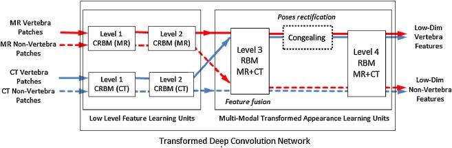 Multi-modal vertebrae recognition using Transformed Deep Convolution